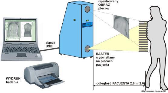 Schemat diagnostyki metodą mory projekcyjnej